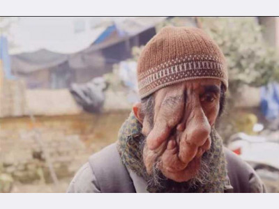 Help Ashok 's Surgeries